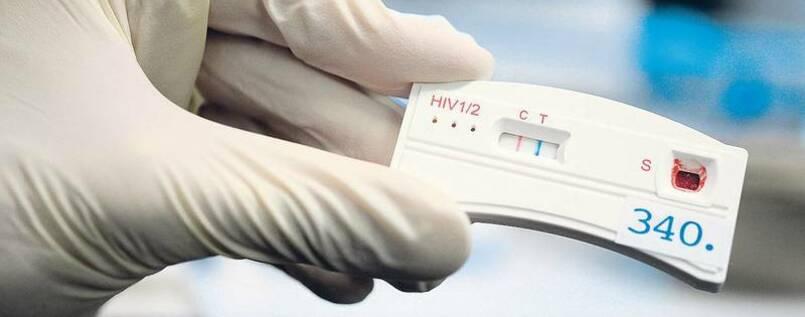 HIV-Test allein zu Haus - Nachrichten - prevalent-digest.de